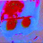 videonic
